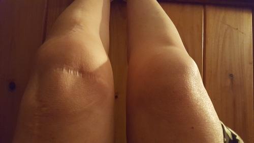 Swollen legs up